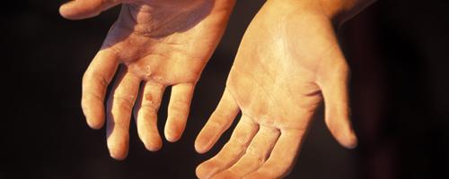 Hur är det att leva med artros?